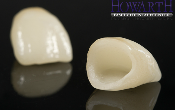 Porcelain Ceramic Crowns