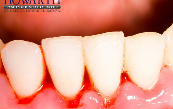 Gingivitis and Gum Disease Treatment