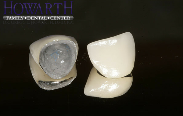 Porcelain to Metal Crowns
